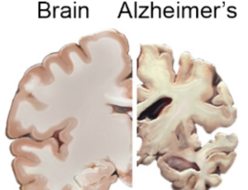 Is Your Diet Putting You at Risk For Alzheimer's Disease?